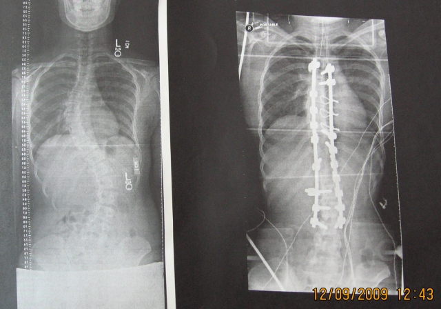 Surgery Xray